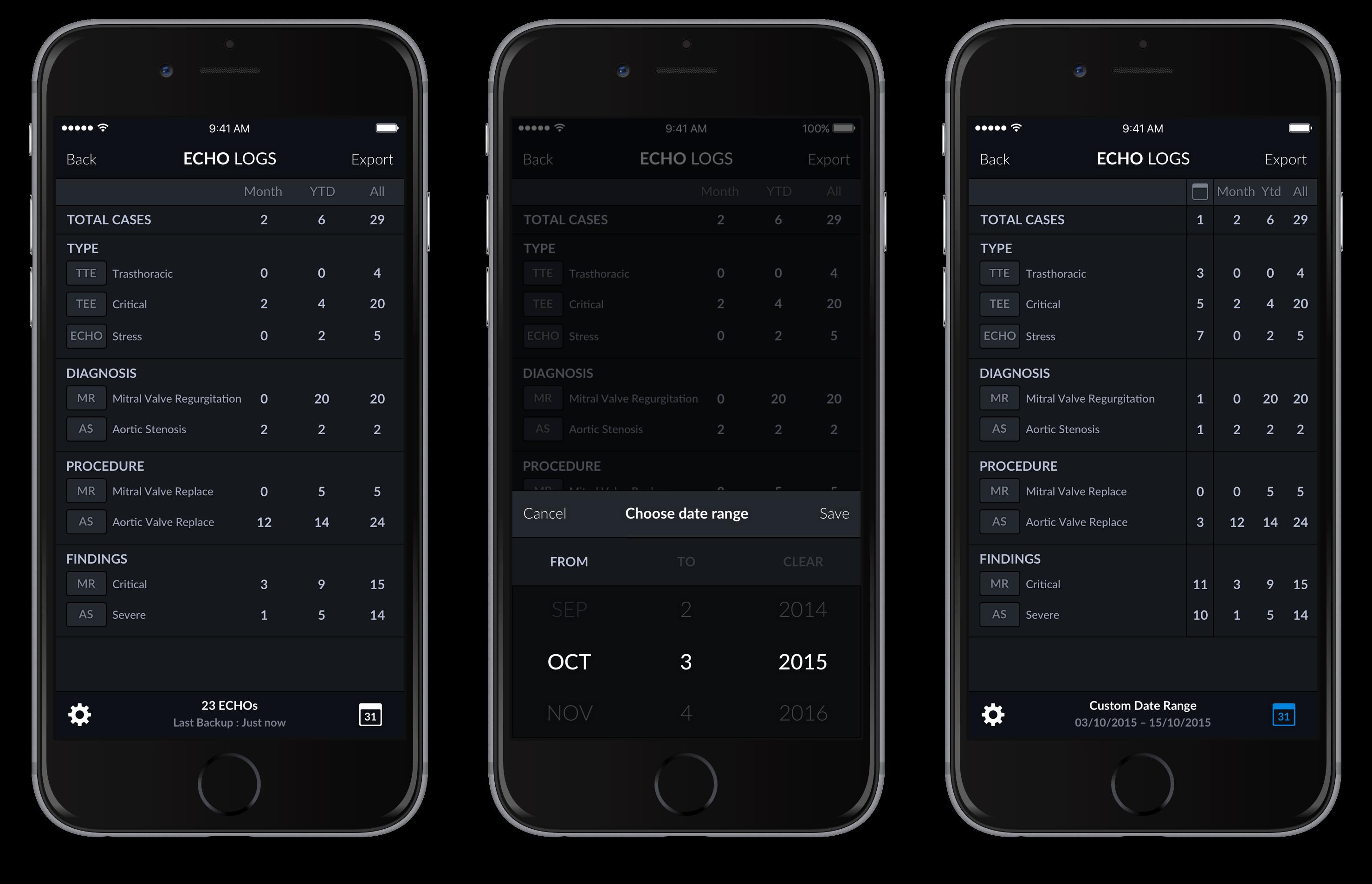 Echo Logs – iPhone 4