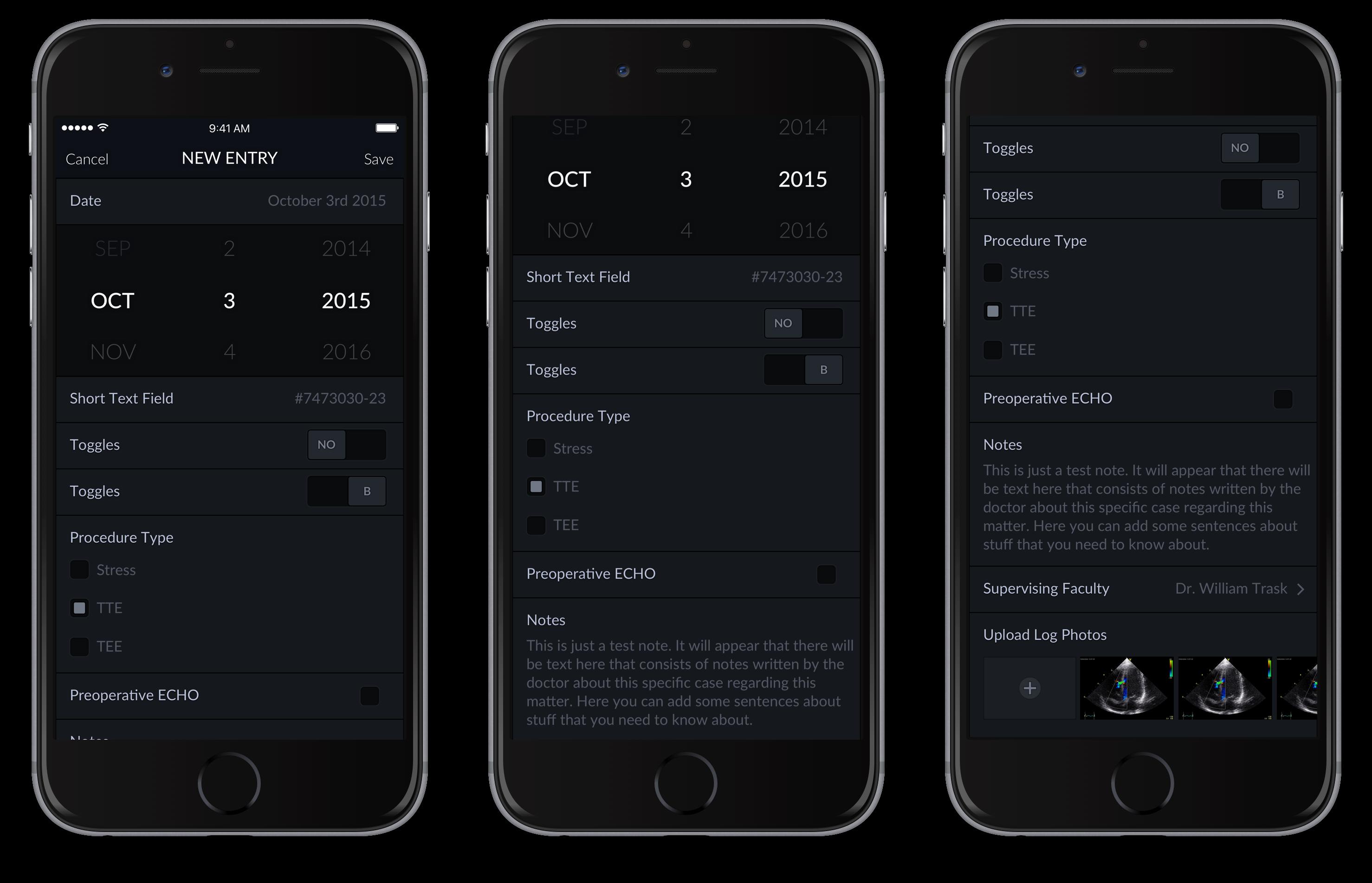 Echo Logs – iPhone 5